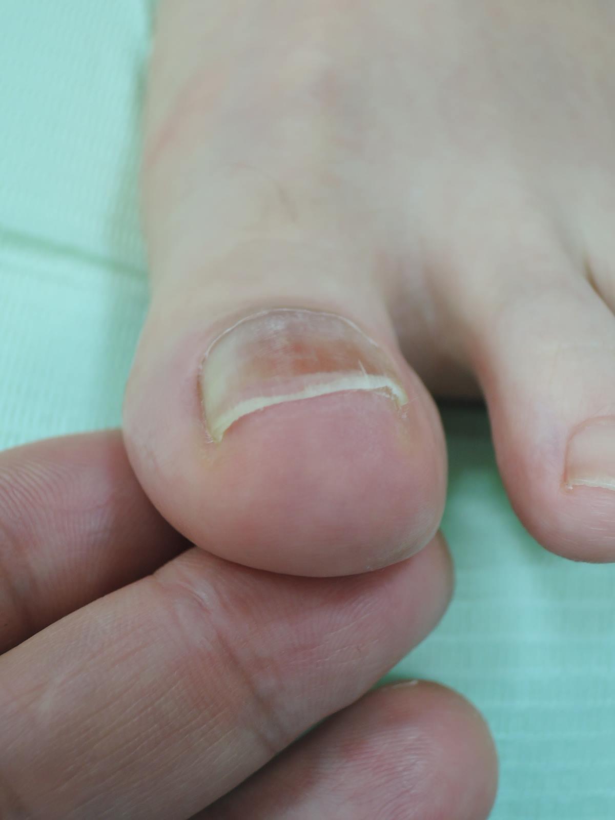 爪 横 痛い 足 親指
